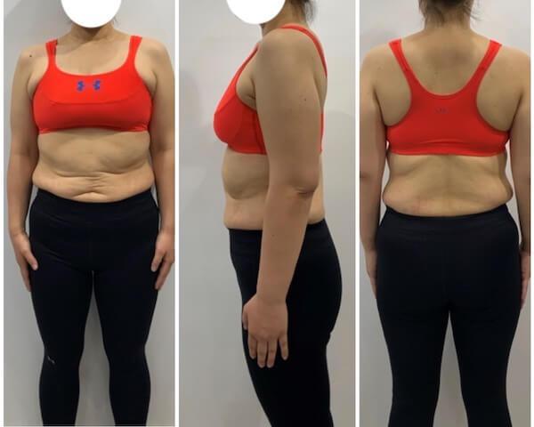 2ヶ月間のダイエット前の女性の写真